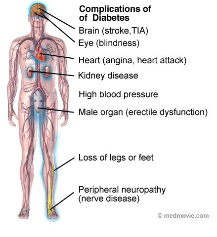Diseases caused due to Diabetes