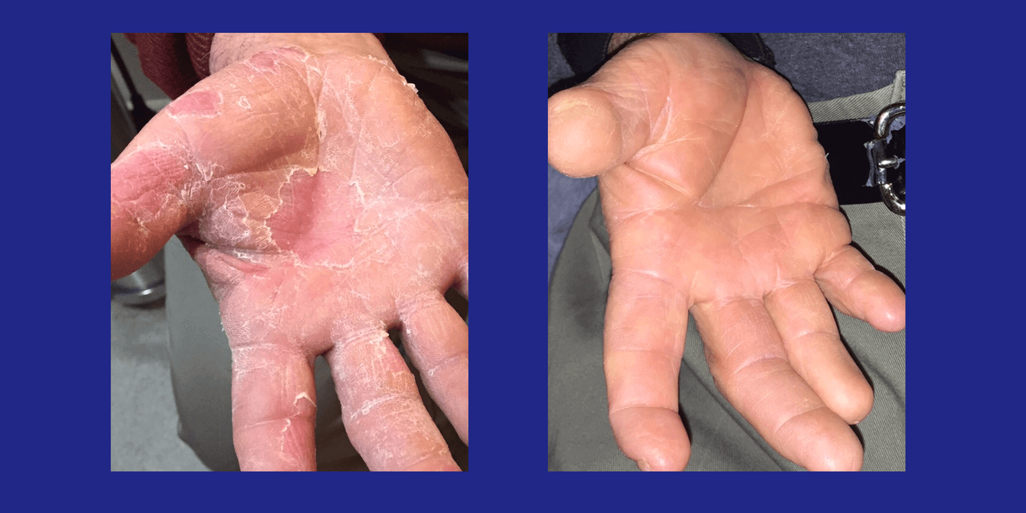 Fungus on the Hands
