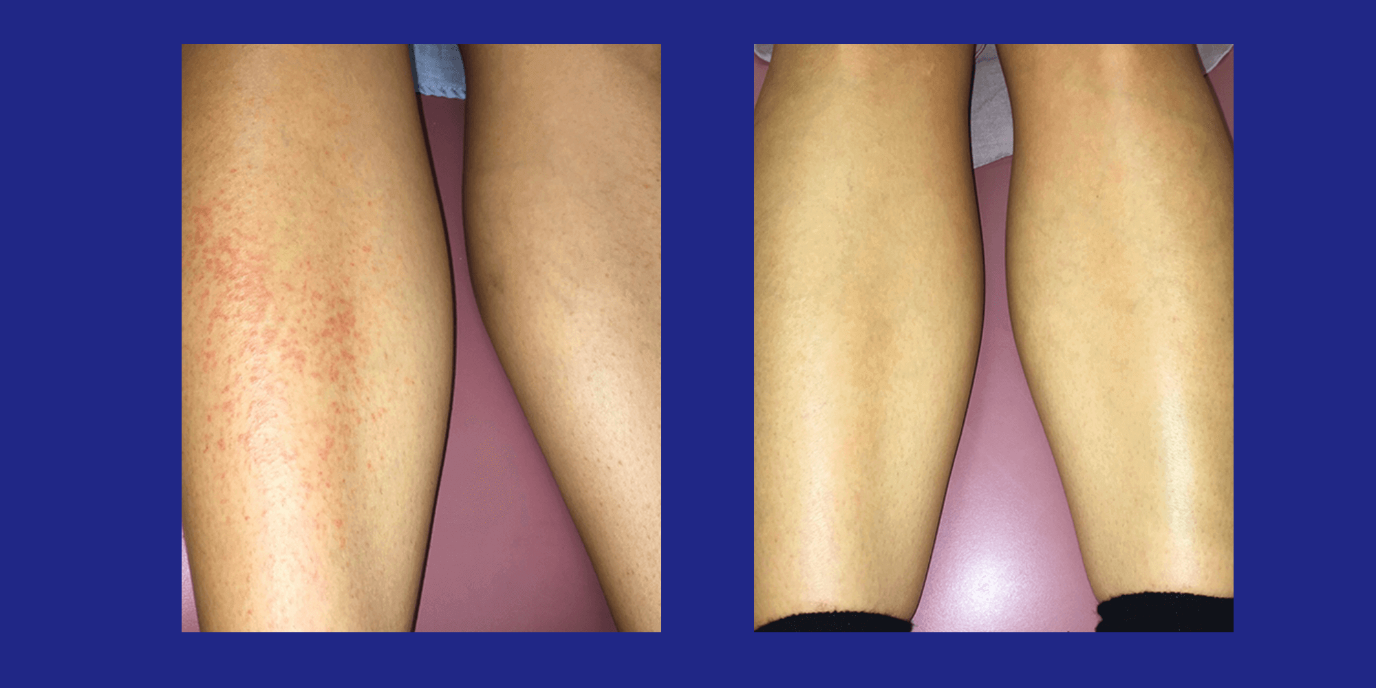 Measles on leg cured by Biomag
